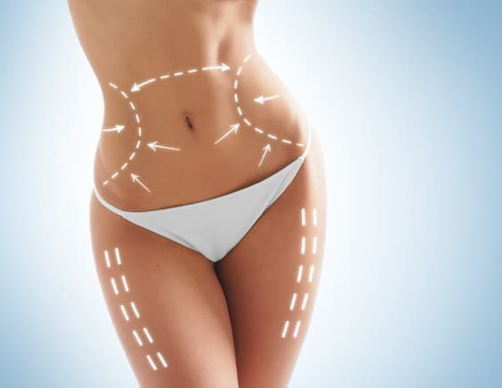 cellulite removal seattle
