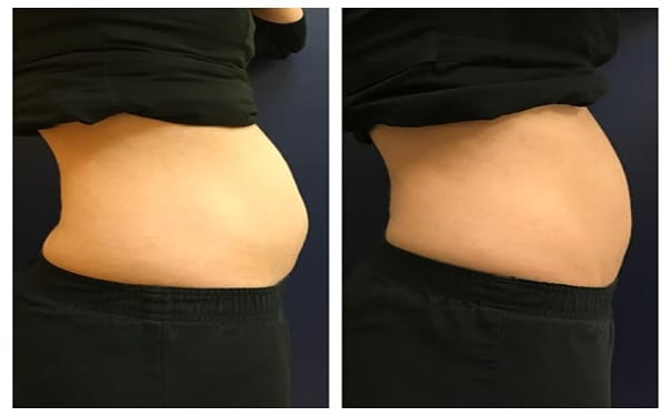 CoolSculpting Seattle   Before and 15 Weeks After The First Session